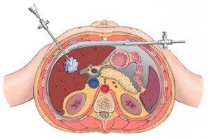 hopital-en-folie-1-300x201 dans Cancer du rein