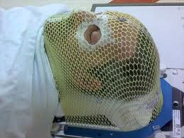 masque de radiothérapie
